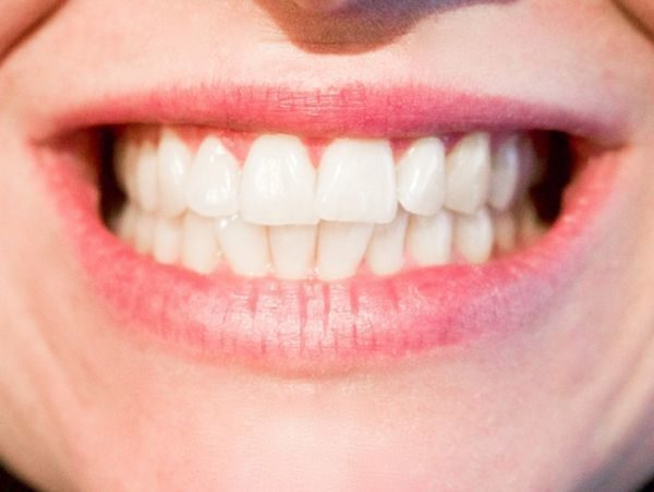best-products-for-whitening-at-home-smile